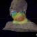 Radioterapia de Cabeça e Pescoço com Arco Volumétrico