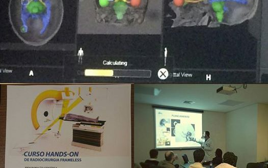 II Curso Hands-on de Radiocirurgia Frameless