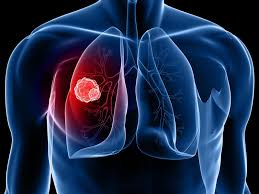 Últimos avanços da imunoterapia para câncer de pulmão