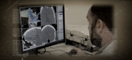 Radioterapia em tumor de Próstata após Cirurgia