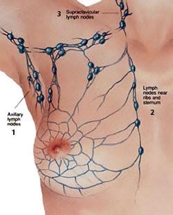 [Radioterapia em câncer de mama] – Novidades