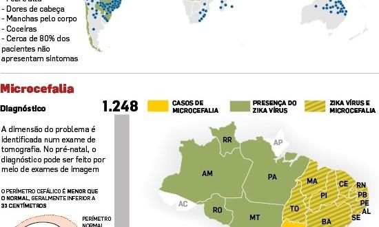 SP tem 1ª suspeita de microcefalia por Zika